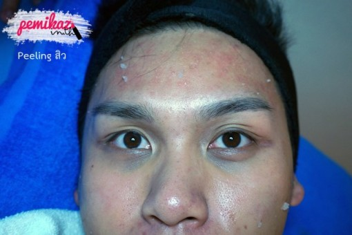 Charismma Clinic Anne 5 Peeling