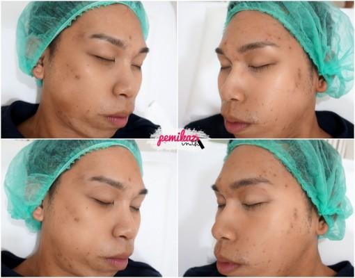 4-Pemikaz-Minerva Clinic - ก่อน หลัง ทำ หน้า