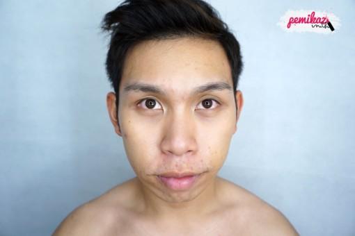 acne benzac 1