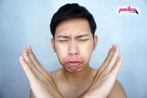 acne benzac 10