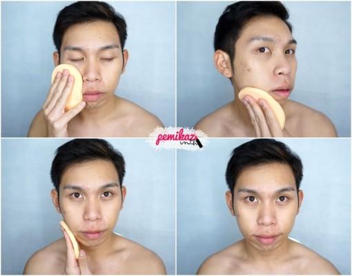 acne benzac 5