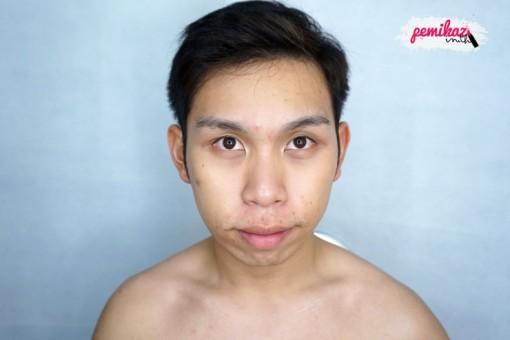 acne benzac 6