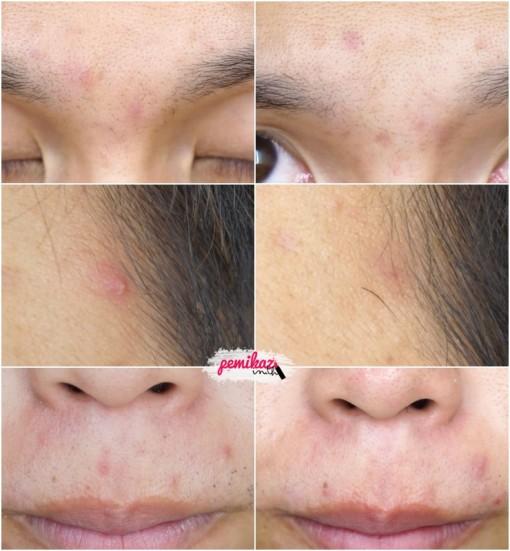 acne benzac 7