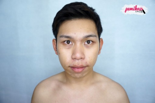 acne benzac 8