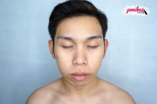 benzac acne 2