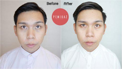 vdo-1-face-advance-whitening-complex-serum-copy