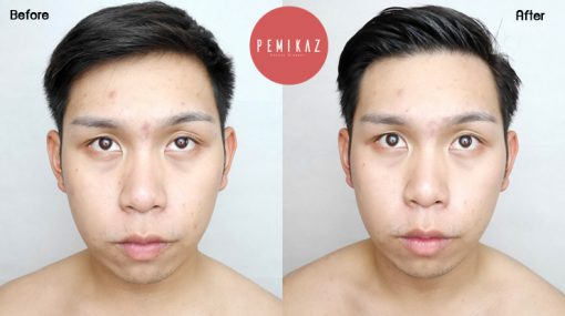 trends-skincare-before-after-1