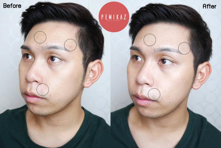 bk-retouch-acne-concealer1